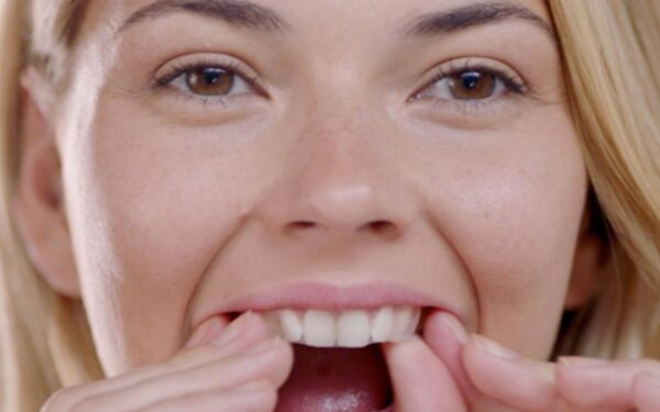 Tips for Dental Care after Using Crest Whitening Strips in UK